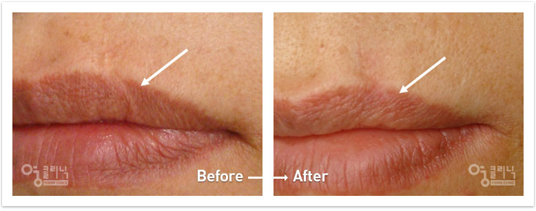 입가 흉터 치료사례 4