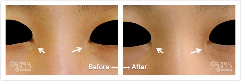 눈 흉터 치료사례 1
