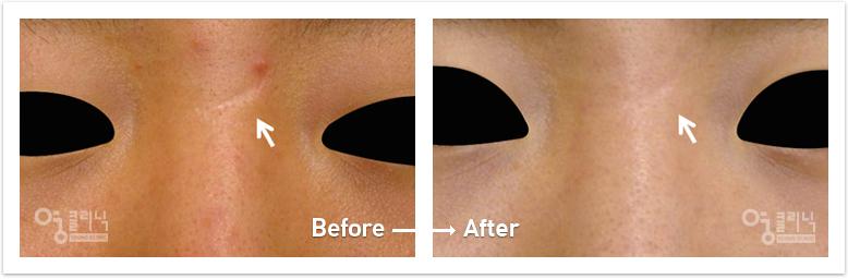 눈 흉터 치료사례4