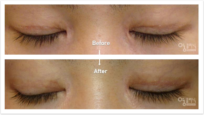 눈 흉터 치료사례 5