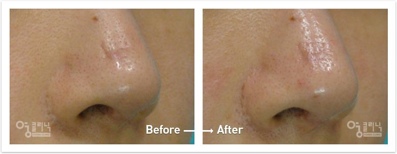코 흉터 치료사례 1