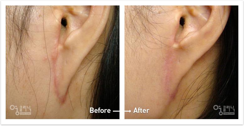 귀 흉터 치료사례 2
