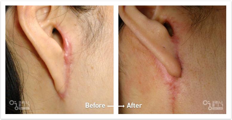 귀 흉터 치료사례