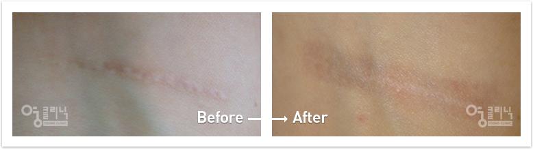 팔다리 흉터 치료사례 2