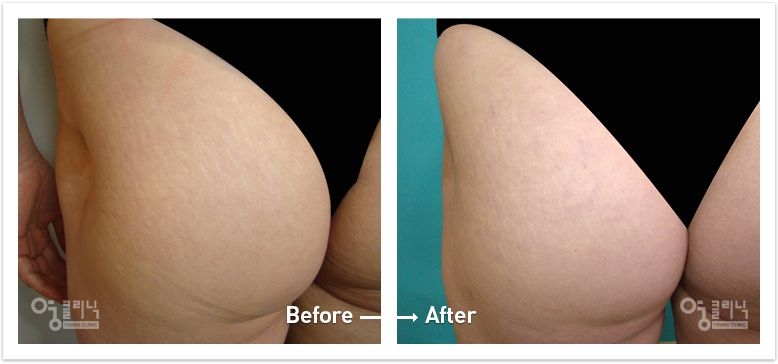 팔다리 흉터 치료사례 3