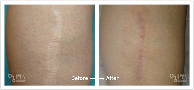 팔다리 흉터 치료사례 4