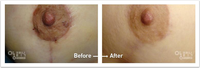 가슴 흉터 치료사례 2