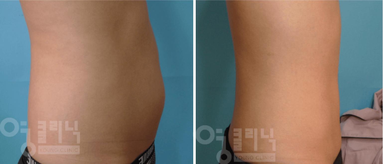 복부 지방흡입 부작용 치료 및 재수술 후 3개월