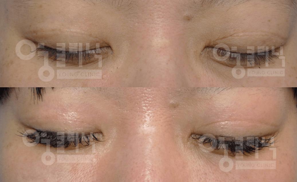 쌍커풀 흉터 2차 치료 후 3개월
